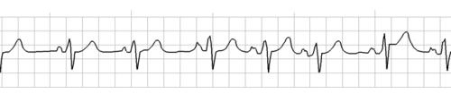 ECGSimulator_arrythmia